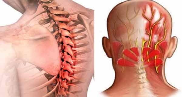 tratamentul nevralgiei umerilor cervicali vraji de durere articulară