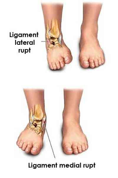 unguente din ruperea ligamentelor gleznei ce vitamine provoacă dureri articulare