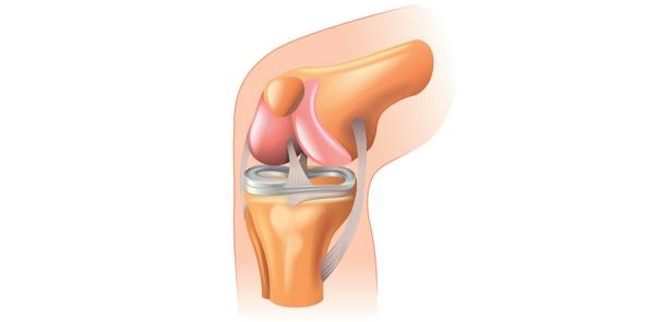inflamația articulațiilor mari  volatilitatea durerii articulare